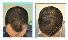 A hajátültetés
