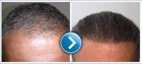 Greffe de cheveux en Hongrie kedvező feltételekkel